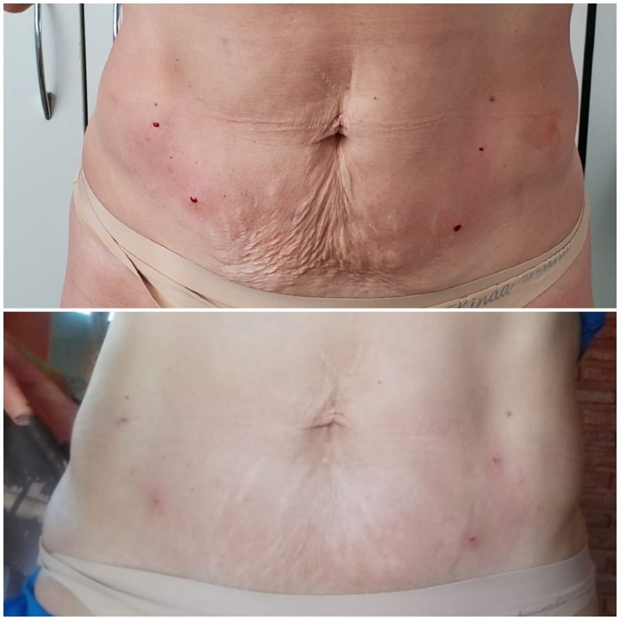 Hilos tensores en abdomen