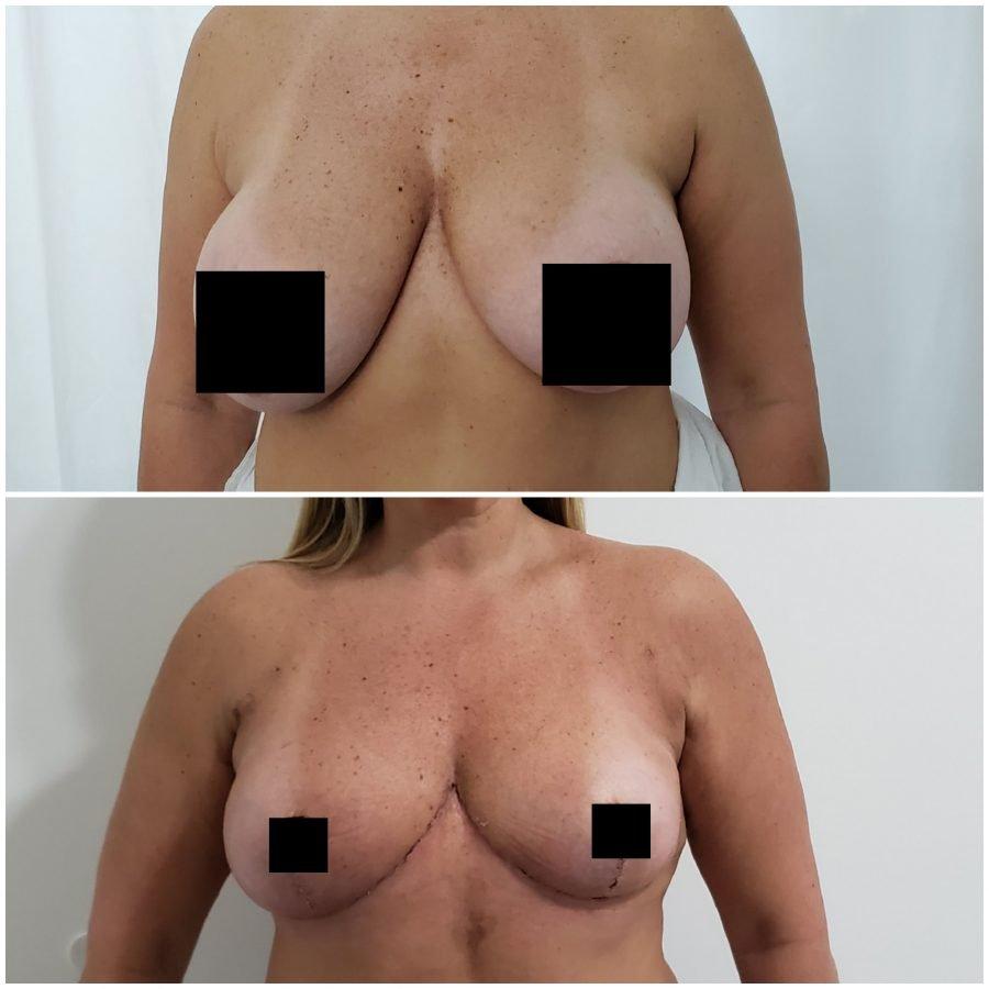 Antes y despues de una reducción de pechos